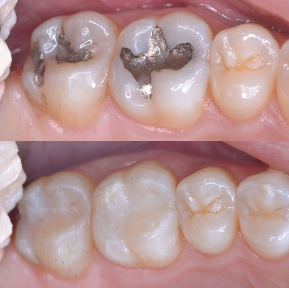 Before and After Dental Fillings