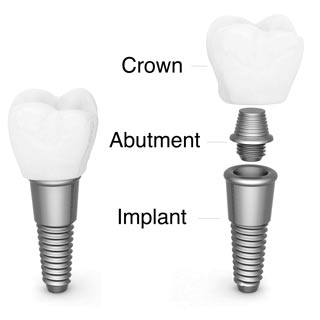 Dental Implant Breakdown