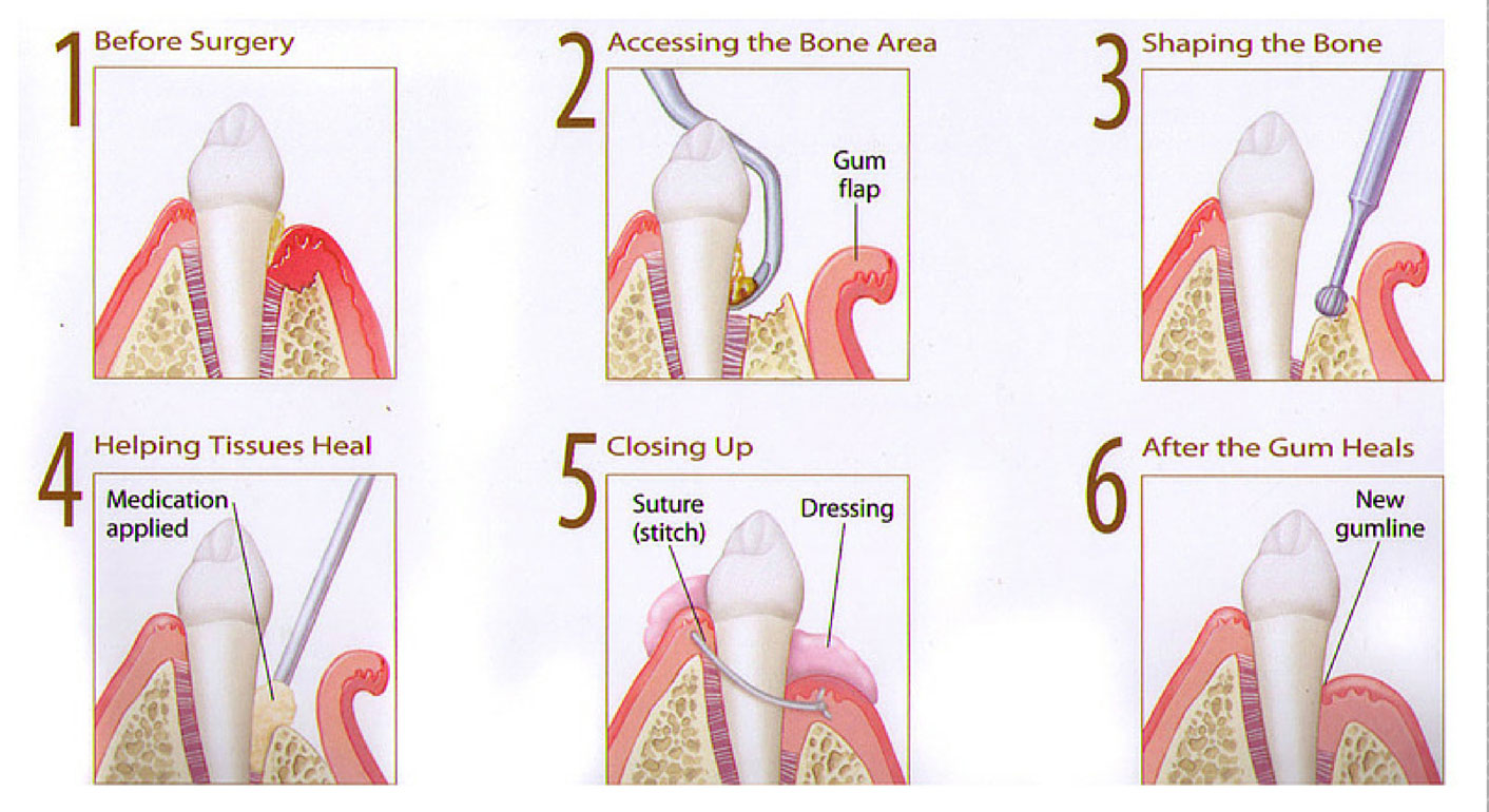 Gum Disease Treatment Illustration