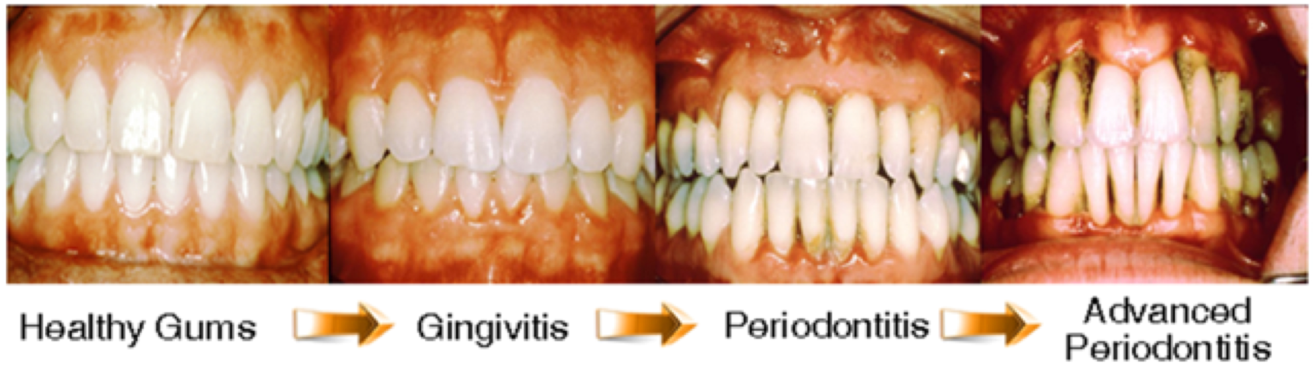 Periodontal Disease Illustration