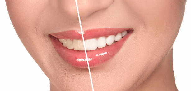 Porcelain Veneers Picture